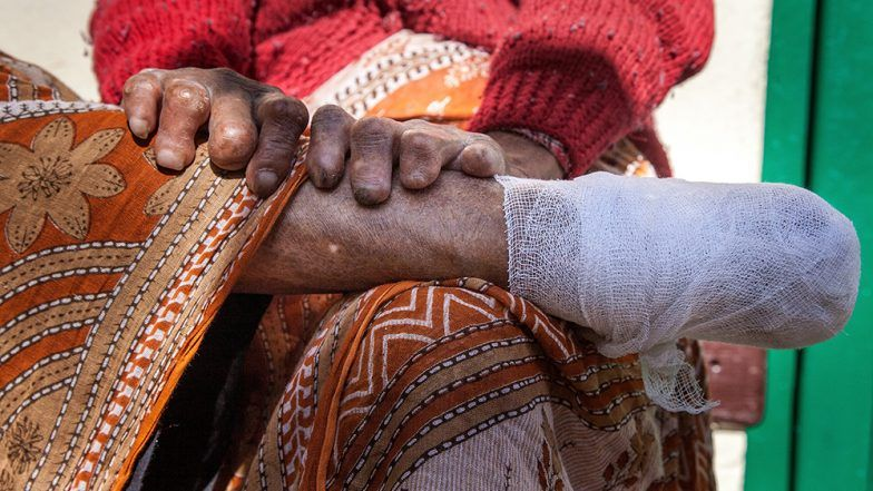 World Leprosy Day 2019: How India Can Eliminate Leprosy by Early Detection and Rehabilitation