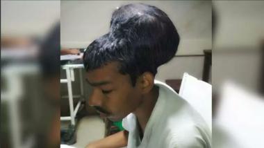 Mumbai: Doctors Remove 'World's Largest Brain Tumour'