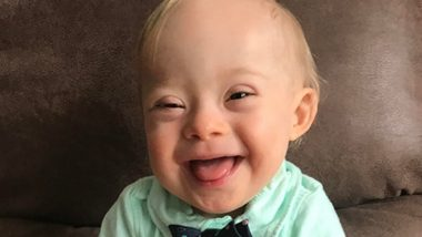 World Down Syndrome Day: Famous People With Down Syndrome Who Changed The Way World Views The Condition