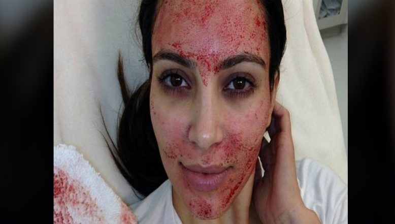 Vampire Facial is The Latest Fad in The Beauty World