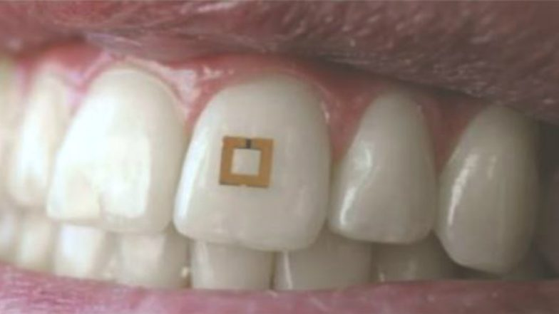 Now a Tooth Sensor Can Trace What you Eat and Keep you Healthy