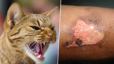 Woman Attacked By Cat Develops Rare Flesh-Eating Disease Called Pyoderma Gangrenosum