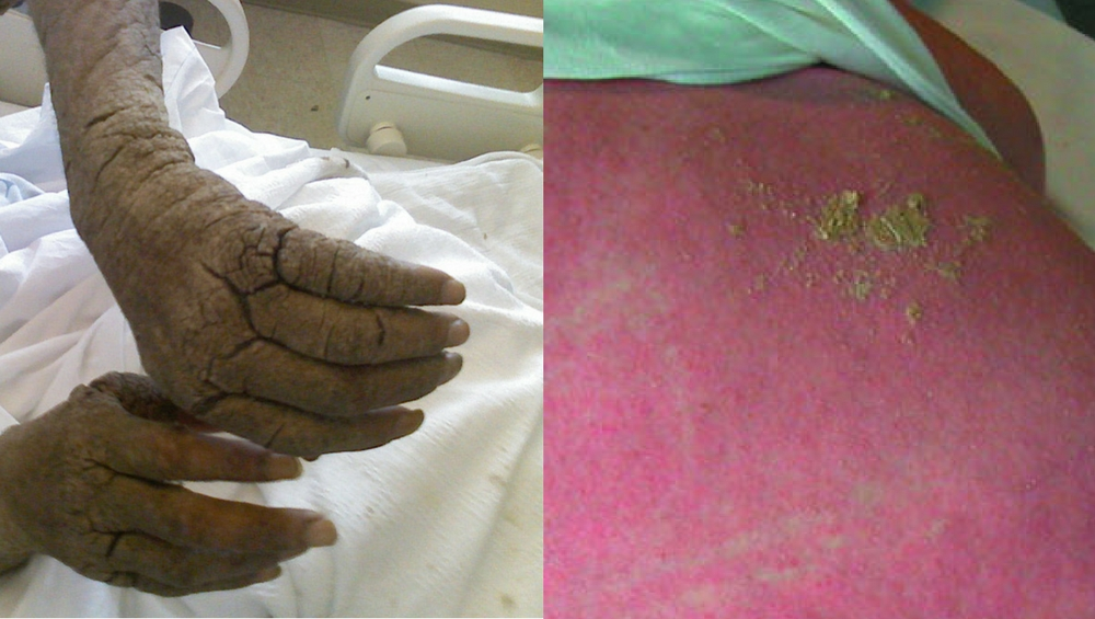 Nursing Home Resident 'Eaten Alive' By Scabies Until Her Death