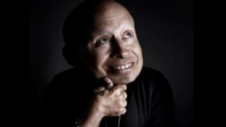 Verne troyer mini me of austin powers dies at 49 latestly verne troyer mini me of austin powers dies at 49 bookmarktalkfo Image collections