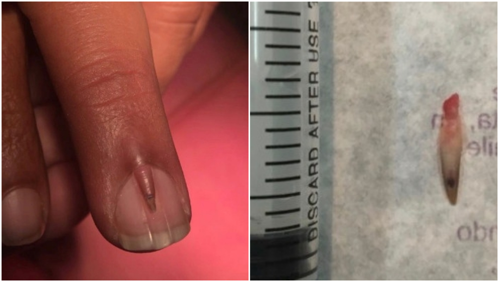 Double Nail Removed From Man S Finger Photo Credits Sciencedirect