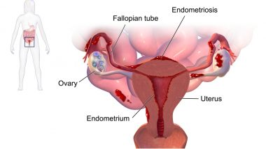 Endometriosis Symptoms, Causes and Early Signs