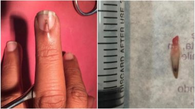 Double Nail Growth 0 Shares Shocking Pics Stani Man Develops An Extra Growing From His Middle Finger