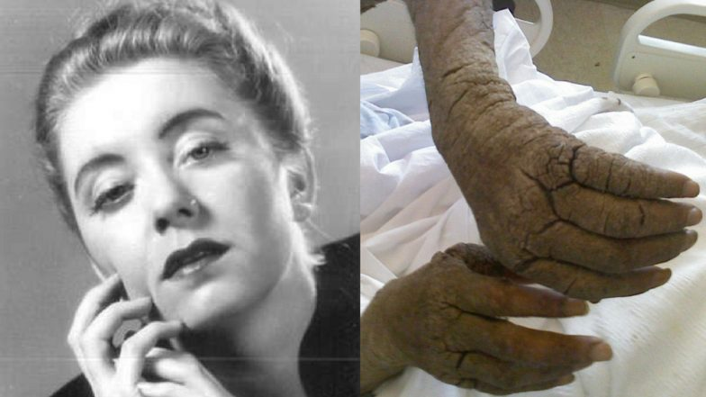 Woman in nursing home eaten alive by scabies