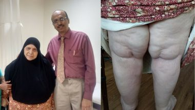 Immobile Iraqi Woman Walks After 15 Years, Thanks to Indian Doctors