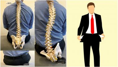 Man Warned About Back Pain Because of Sitting on Fat Wallets and Twitterati is Happy for Being Broke