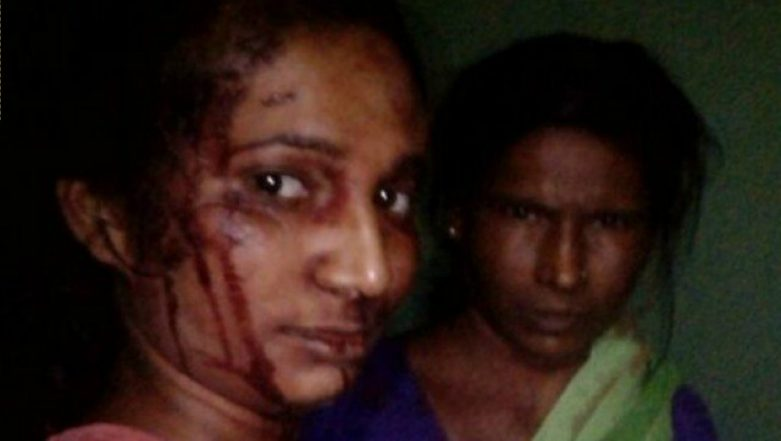 Indian Woman Bravely Fights off a Tiger With a Stick, Takes a Selfie After Surviving the Attack