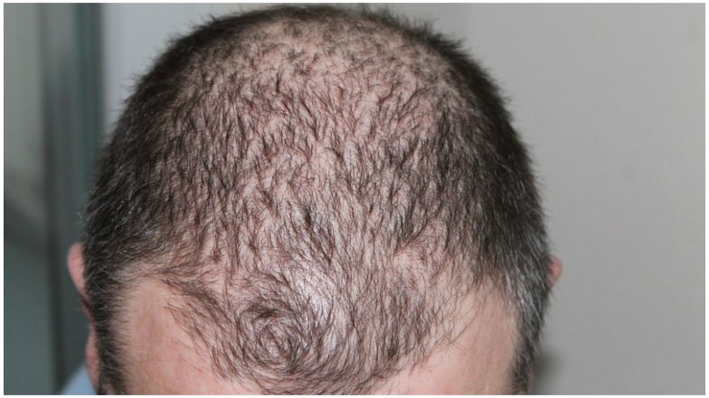 Treat Hair Loss With This Novel Drug
