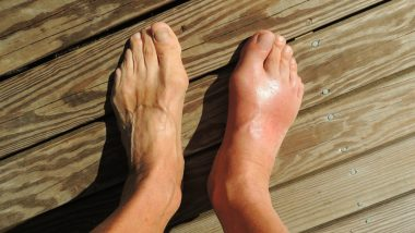 Gout Won't Increase Fracture Risk in Arthritis Patients, Says Study