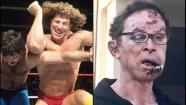 Tom Magee, Former WWE Wrestler, Beaten by Six Men Over Car Parking Space; Suffers Multiple Injuries