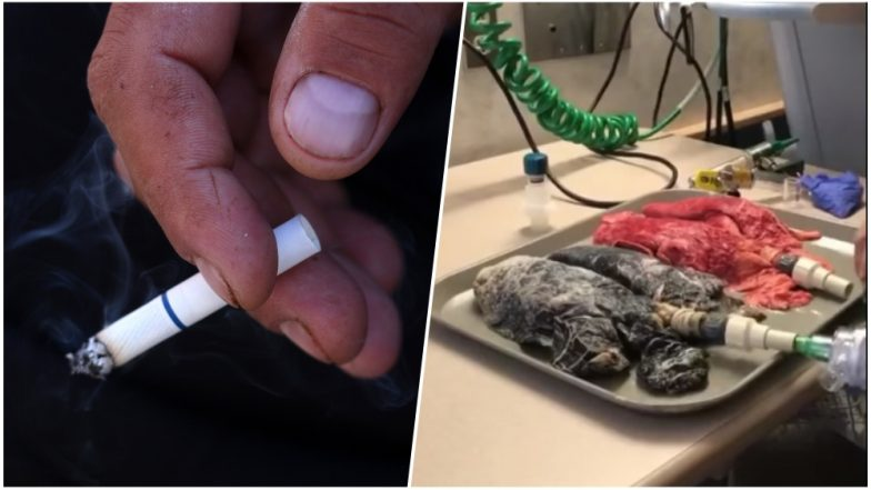 Want to Quit Smoking? Watch This Alarming Video of a Smoker's Lungs Shared by a Nurse