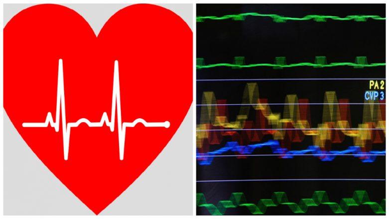 Kolkata Sees its First Heart Transplant, Organ Flown in From Bengaluru Passed Through Green Corridor