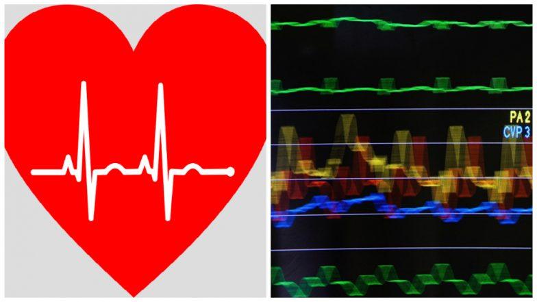 Kolkata Sees its First Heart Transplant, Organ Flown in From
