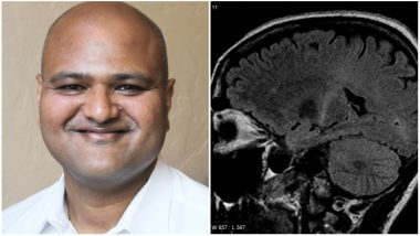 Indian Scientist Gets Diagnosed With ALS, Ironically The Disease He Was Researching On