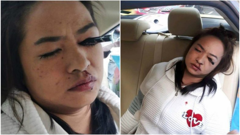 Applying Makeup in a Moving Car is Dangerous! This Woman Had Her Eyeliner Stuck in Eye After Freak Accident