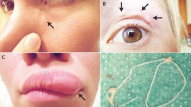 A Moving Lump in a Woman's Face Turned out to be A Live Worm! View Pics of Migrating Dirofilaria Repens