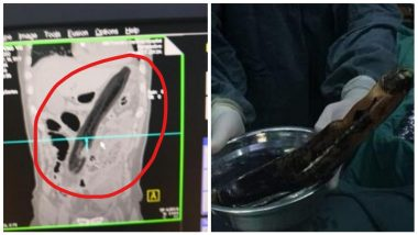 Man Shoves Eggplant In To His Anus to Relieve Constipation, Ends Up In Hospital