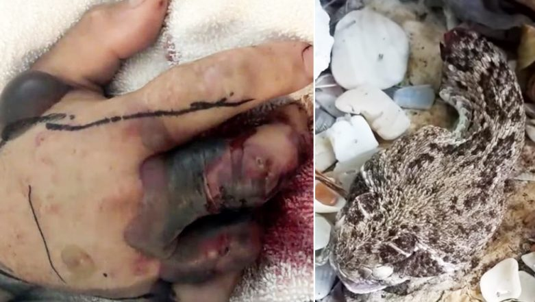 Are Rattlesnakes Poisonous? Man Bitten by a Severed Head of Snake Almost Faced Death, Watch Video