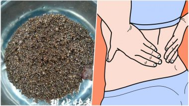 Around 3,000 Kidney Stones Found In Chinese Woman's Body After She Complained of Back Pain (View Pic)