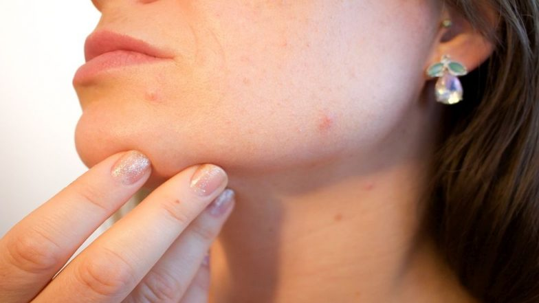 Foods That Causes Acne: 5 Worst Acne-causing Staple As Well As Junk Food That You Must Avoid