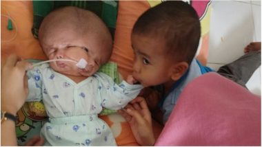 Two-Month-Old Baby Born with Two Faces in Indonesia! Conjoined Twin Failed to Develop a Body (View Pic)