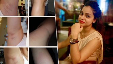 Sumona Chakravarti Slams UrbanClap's Shoddy Beauty Services That Left Her Skin Blotched And Bruised - view pic