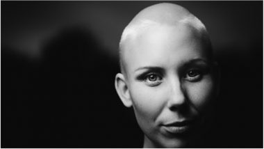 Hair Loss & Chemotherapy: Why it Happens & What to Expect During Cancer Treatment