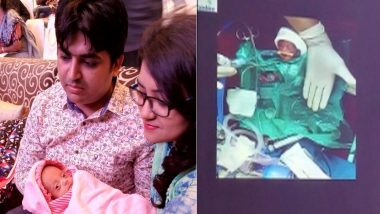 Smallest baby in South Asia Born In Hyderabad's Hospital, 'Cherry' Weights Only 375 grams