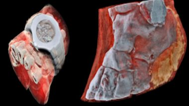 The World's First Full-Color, 3D X-Rays Will Boggle Your Mind (View Pics)