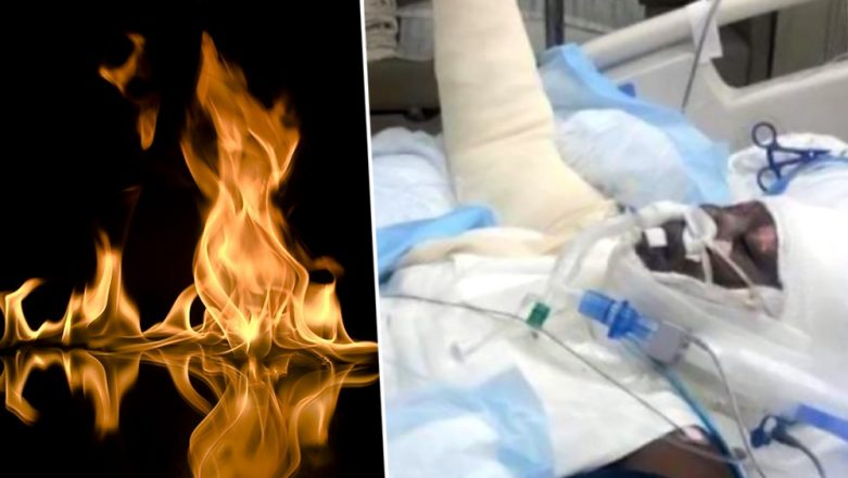 'Fire Challenge' on Internet Leaves 12-Year-Old Girl With Severe Burns! Not Just Kiki & Momo Challenge is Dangerous