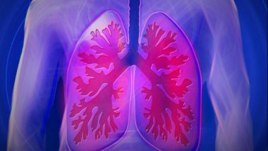 Benefit of Low-Dose Computed Tomography for Lung Cancer Screening Outweighs Potential Harm