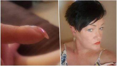 Is This A Sign of Cancer? UK Woman's 'Clubbed' Fingernail Turns Out to Be a Symptom of Lung Cancer
