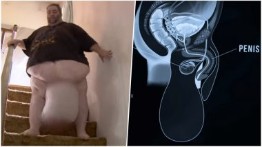 Man With 35 Kg Testicles Undergoes Life-Saving Surgery, Finally Gets To Have Sex With Wife After 7 Years