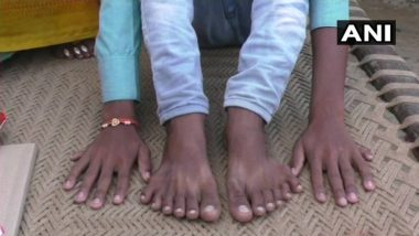 Barabanki: Relatives Attempt to Kill Boy Who Has 12 Fingers And Toes On Tantrik's Advice to Get Rich