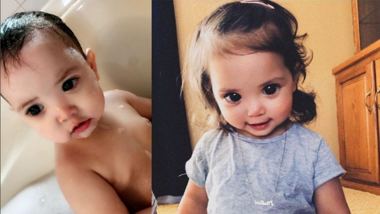 Little Girl With Big Beautiful Eyes Suffers From Axenfeld-Gieger Syndrome (View Her Gorgeous Pics)