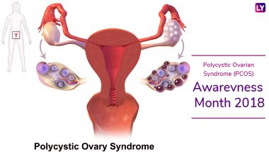 Polycystic Ovarian Syndrome (PCOS) Awareness Month 2018: Symptoms of the Endocrine Disorder That Usually Go Unnoticed