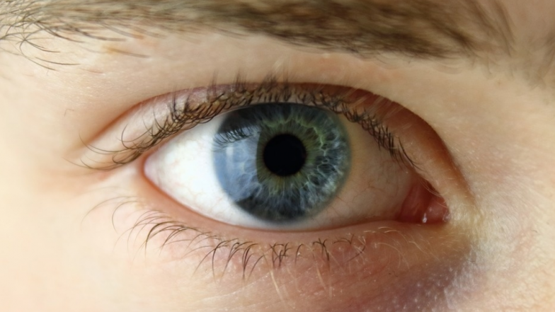 Contact Lens Can Blind You! Eye Infection Caused By Contacts Can Affect Vision