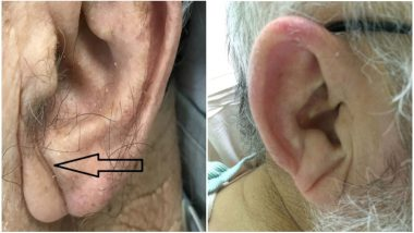 Do You Have A Crease On Your Earlobe? Indian Doctor Says It's A Sign of Heart Disease
