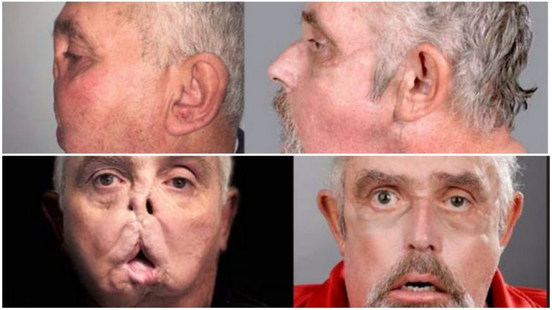 Face Transplant Successfully Carried Out On 64-Year-Old Who Became The World's Oldest Recipient