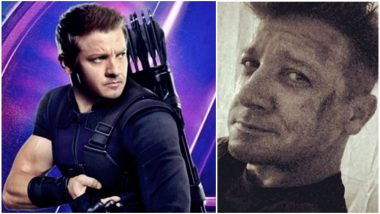 Avengers 4: This Pic of an 'Injured' Jeremy Renner is Making Us Worried About Hawkeye's Fate