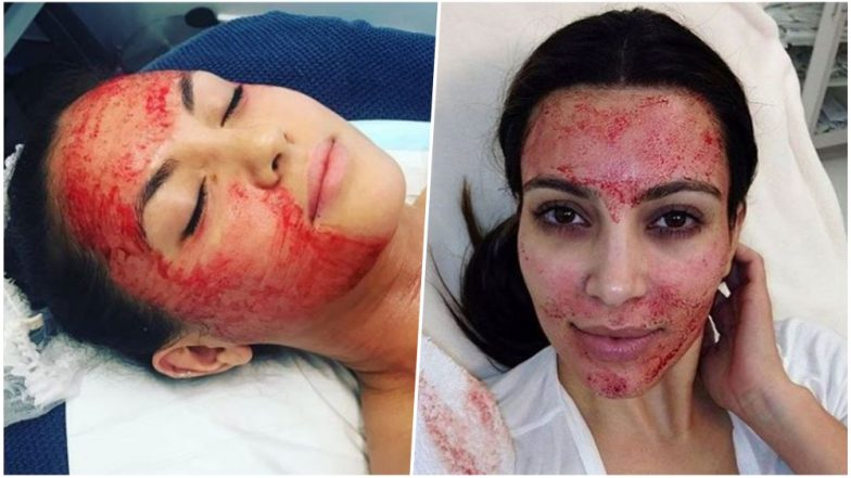 Vampire Facial Suspected of Carrying HIV Risk! Here's What You Need To Know About This Controversial Beauty Treatment