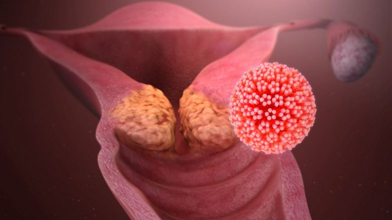 Human Papillomavirus (HPV): Causes, Symptoms and Treatment of the Most Common Sexually Transmitted Infection That Can Lead to Cancer
