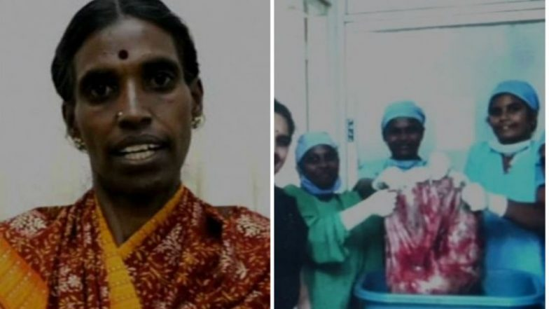 Coimbatore: Doctors Remove 33.5 Kg Ovarian Tumor, Eye World Record