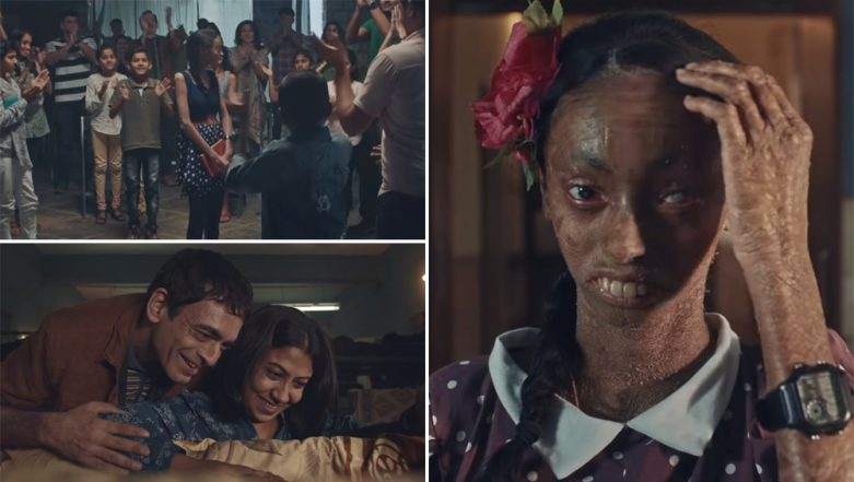 Vicks Returns With Emotional Video Ad of Nisha & Her Trauma in Dealing With Ichthyosis, a Rare Skin Disorder
