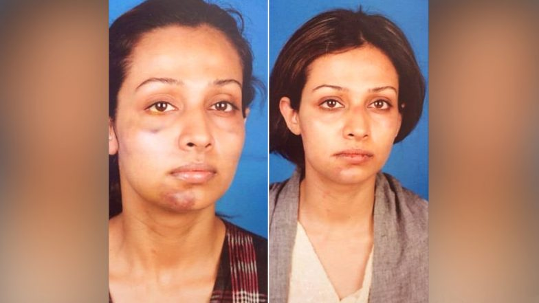 Flora Saini Accuses Aankhen Producer Gaurang Doshi of Physical Abuse - See SHOCKING Pic