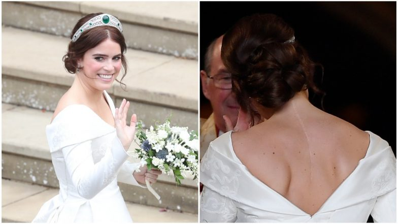 Princess Eugenie Shows Off Her Scoliosis Surgery Scar in Royal Wedding Dress! Know All About the Medical Condition of the Spine